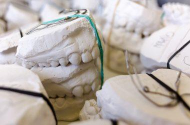 jak zacząć leczenie ortodontyczne