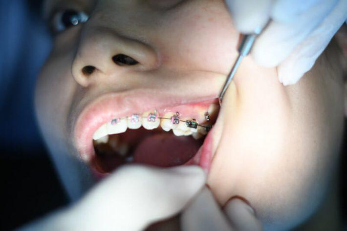 dopasowany aparat na zęby ortodontyczny